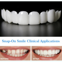 Виниры Snap on Smile